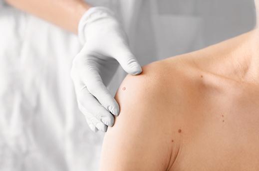 Gornji deo tela (leva polovina) ženskog pacijenta ilustruje pregled dermatologa kada se radi o najčešćim promenama na koži, kao i mladežima. U fokusu je nekoliko mladeža koji su čest razloga pacijenata dermatologu