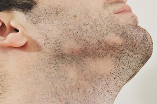 Brada i deo lica pacijenta koji je došao na pregled kod dermatologa. Ilustruje promene na koži lica